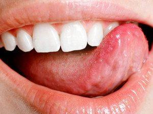 Можно ли лечить бородавку йодом
