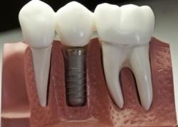 Противопоказания к проведению зубной имплантации