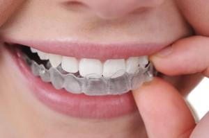 Зубные каппы Invisalign (Инвизилайн)