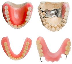 съемные зубные протезы-Сумы