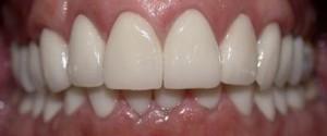 восстановление зубов Сумы