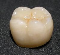 зубная-коронка-Сумы