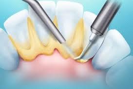 Как происходит чистка зубов от камня