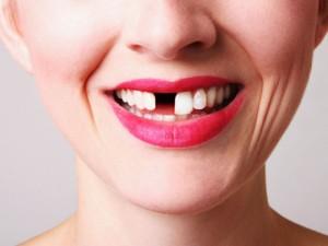 Основные причины выпадения зубов