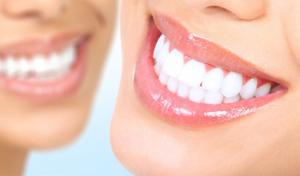 Отбелить зубы лазером