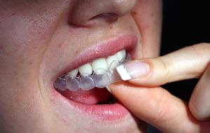 Отбеливающие каппы для зубов