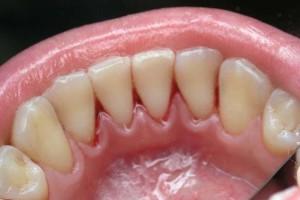Удаление зубного камня в Сумах