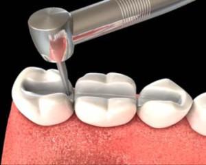 Виды шинирования зубов