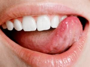 катаральный глоссит