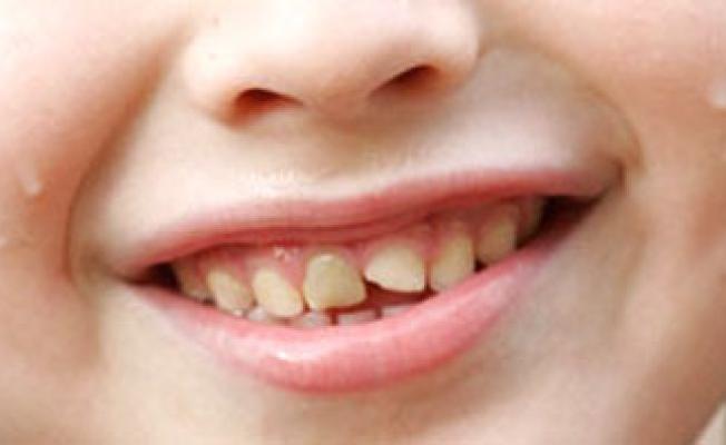 Что будет если проглотить кусочек зуба