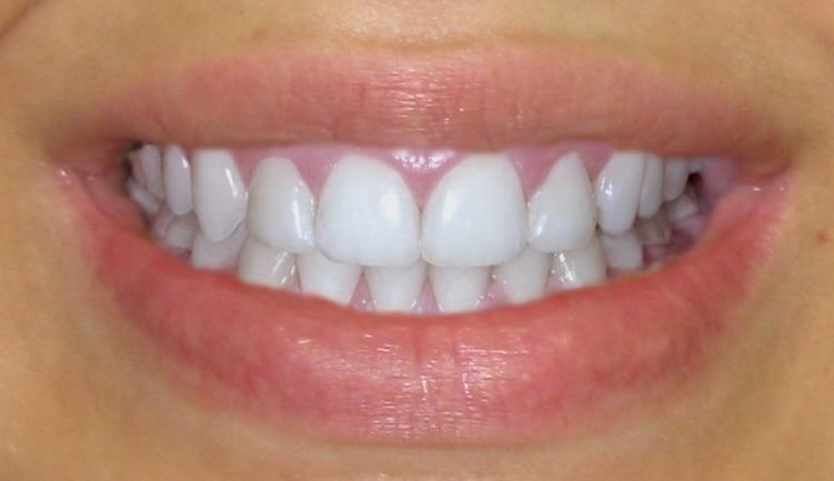 установка виниров на передние зубы цена москва