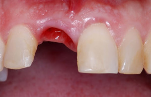 дырка в десне после удаления зуба