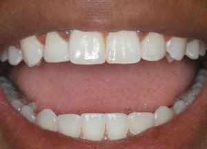 отбелить зубы в сумах