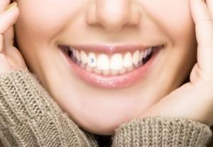 стразы на зубах