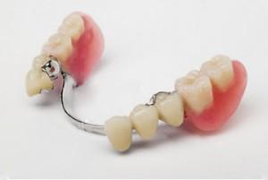 вставить зубы Сумы