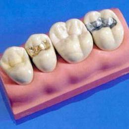запломбтровать зуб Сумы