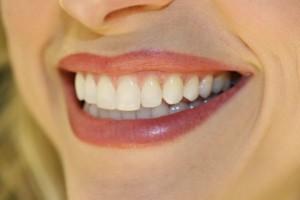 Эволюция отбеливания зубов