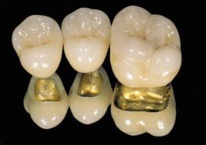 Металлокерамика на золоте