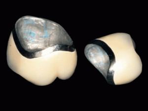 Металлокерамика с металлическим каркасом