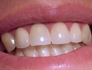 Реставрация зубов (Сумы)