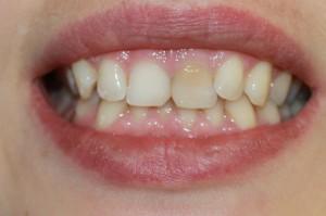 Внутриканальное отбеливание зуба