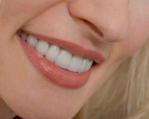 Восстановление зубов в Сумах