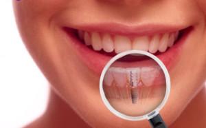 Зубная имплантация в Сумах
