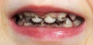 черные точки на зубах