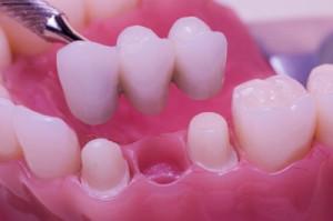 мост зубной Сумы