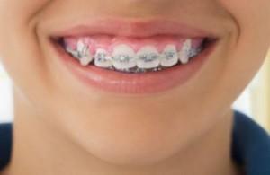 ровнять зубы Сумы