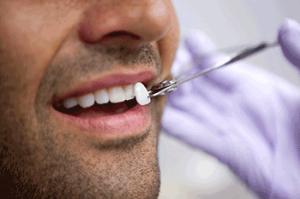 установка виниров на зубы Сумы