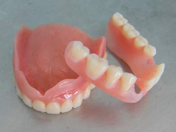 Ремонт съемных зубных протезов своими руками
