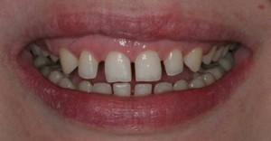 Большие промежутки между зубами