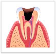 Болезни зубов пульпит