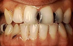 Кариес – главная причина разрушения зубов