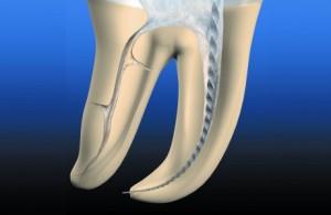 Лечение каналов зуба Сумы