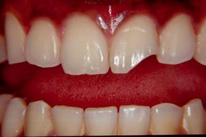 Скололся зуб
