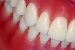 Стоматологические заболевания Гингивит