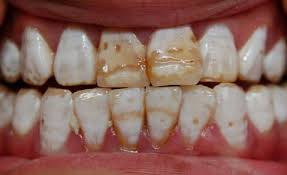 Тетрациклинновые зубы