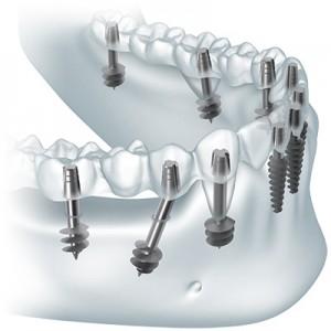 Установка несъемных протезов на имплантаты