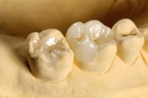 Зубные вкладки Сумы