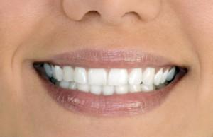 Зубы из металлокерамики Сумы