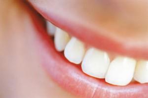 Реставрируем зубы