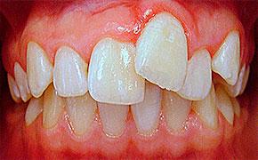 почему зубы криво растут
