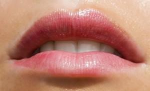 трещина губы