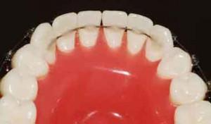 Ортодонтические ретейнеры