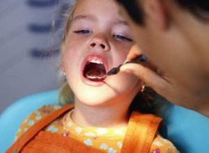 Периодонтит у детей