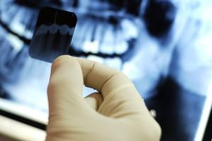 Рентген зубов в Сумах