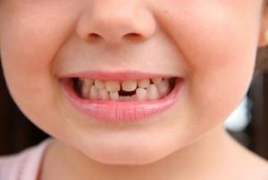 Детский стоматолог-Сумы