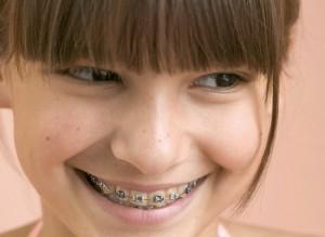 Зубные брекеты в Сумах